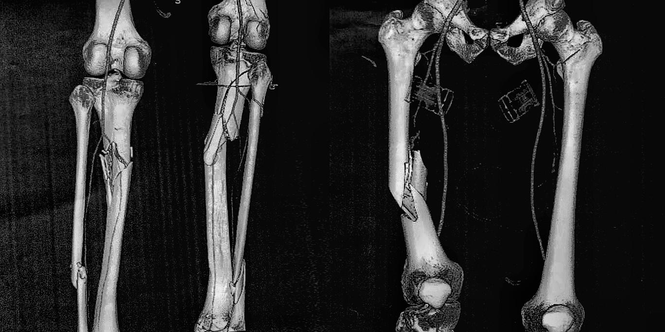 Счупванията на всички пищяли и на едната бедрена кост на навигатора Янаки Янакиев