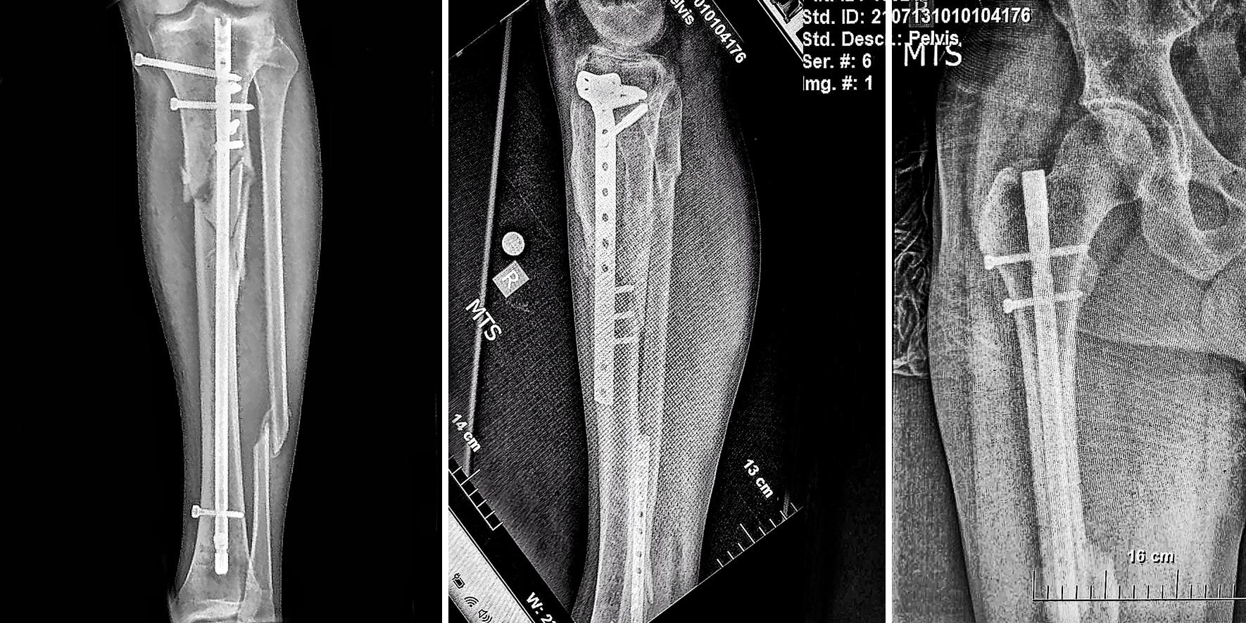 Краката на Янаки Янакиев след 3 операции