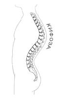 Кифоза - естествена извивка на гръбначния стълб
