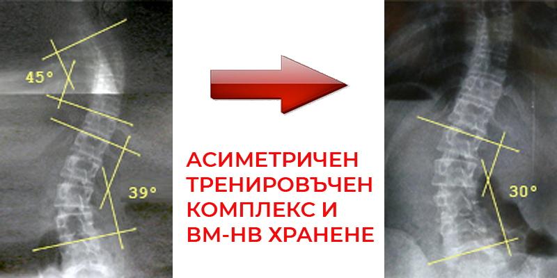 9 градуса подобрение на Сколиоза в резултат на асиметричен, тренировъчен комплекс и ВМ-НВХ
